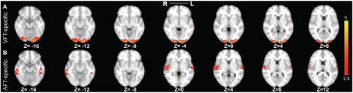 The two reliable specific networks in finger tapping dataset detected by performing clustering analysis on the results of SSICA. (A) The most reliable network specific to the finger tapping with visual cue condition comprising bilateral occipital pole and occipital fusiform gyri. (B) The most reliable network specific to the finger tapping with auditory cue condition comprising bilateral superior temporal gyrus, bilateral Heschl's gyrus, and bilateral middle and inferior temporal gyri (more on the right side). Note that this result is showing the average of spatial maps within each reliable cluster. Z-values range between 2.3 and 5 in both cases.