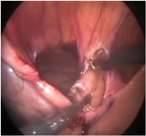 Excision of the sac.