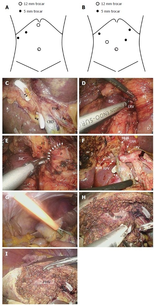 Surgical Procedure For Laparoscopic Gallbladder Bed Res Open I