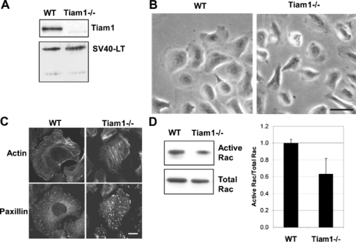 Tiam1−/− keratinocytes spread less well on exogenous Col IV, show more stress fibers, larger focal adhesions, and less Rac activity than WT cells. (A) Lysates were subjected to immunoprecipitation and analyzed for Tiam1 expression. SV40 LT expression was determined by immunoblotting the same lysates. (B) Cells were seeded on a Col IV matrix for 24 h. Bar, 20 μm. (C) Cells were seeded on Col IV–coated coverslips for 48 h, fixed, and stained for F-actin fibers (phalloidin) and focal adhesions (paxillin). Bar, 10 μm. (D) Cells were seeded on a Col IV matrix for 48 h and lysed, and Rac activity was determined. The histogram represents the average Rac activation (relative to the total Rac levels) in both WT and Tiam1−/− cells determined in four independent experiments. Error bars represent the SD.