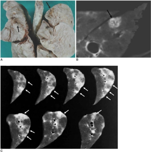 Photograph and CT scan, for the fixed lungs prepared with Heitzman's method, of a dog after being infected for 30 days with P. westermani.A. Photograph of the fixed lung shows multiple pleural spots with areas of hemorrhages (black arrows).B. CT scan of the fixed lung shows a subpleural nodule with bronchioloectasis (black arrow).C. Consecutive contact radiographs show subpleural opacities (white arrows) directed toward the central airways.