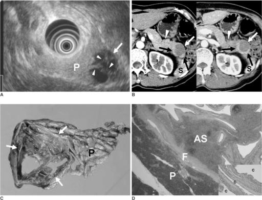figure 11 intrapancreatic accessory spleen findings on mr