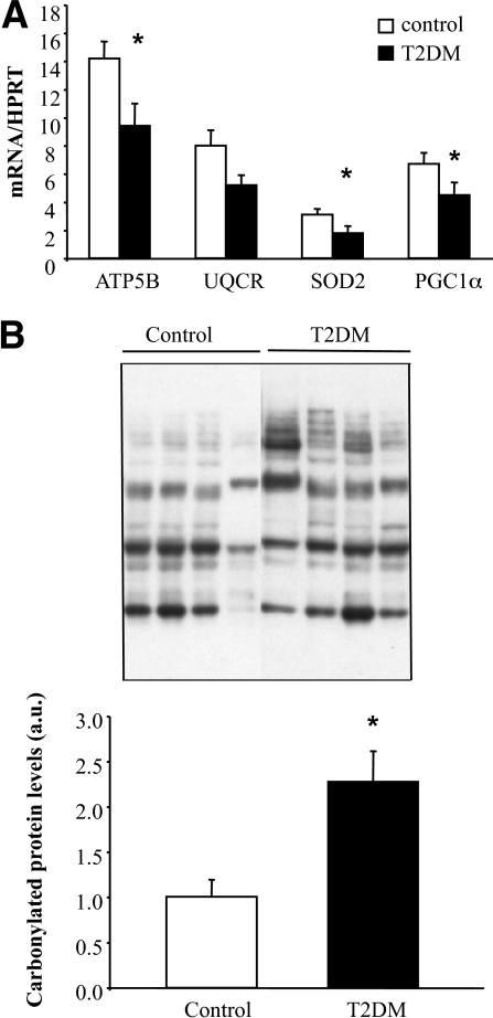 Reduced OXPHOS and antioxidant genes and increased oxidative stress in skeletal muscle of type 2 diabetic patients. A: mRNA levels of ATP5B, UQCR, SOD2, and PGC1α were measured by real-time RT-PCR in skeletal muscle of control and type 2 diabetic patients. Data represent means ± SEM (n = 10). *P < 0.05. B: Immunoblot showing total protein carbonylation in skeletal muscle of control and type 2 diabetic patients. Histogram represents means ± SEM (n = 4).*P < 0.05. ATP5B, ATP synthase, H+ transporting, mitochondrial F1 complex, beta polypeptide; UQCR, ubiquinol-cytochrome c reductase; SOD2, superoxide dismutase 2; a.u., arbitrary units; T2DM, type 2 diabetes.