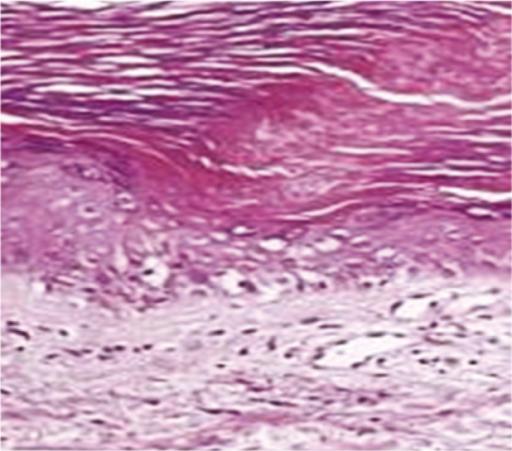 Cornoid lamella | definition of cornoid lamella by Medical ...