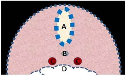 Depiction of a cross section through the early embryo demonstrating the relationship between the neural tube (A), notochord (B), dorsal aortae (C), and gut tube (D).