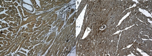 (A) Heart's specimen from normal mice obtained 1 day after exposure to hypoxia. Increased expression of VEGF in both myocardium and vessel walls. (B) Heart's specimen from mdx mice obtained 1 day after exposure to hypoxia. Low expression of VEGF in myocardium and an enhanced signal in vessel walls. Scale bar =100 μm.