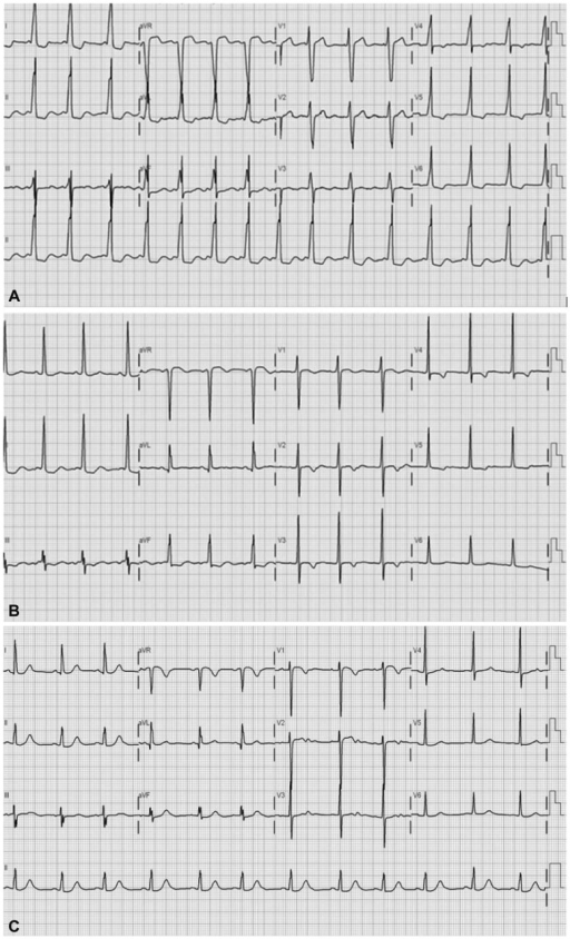 ECG with delta wave. ECG showed the change of delta wave before amiodarone (A) and after amiodarone (B). Delta wave disappeared after use of amiodarone. RFCA also showed successful elimination of delta wave (C). ECG: electrocardiography, RFCA: radiofrequency catheter ablation.