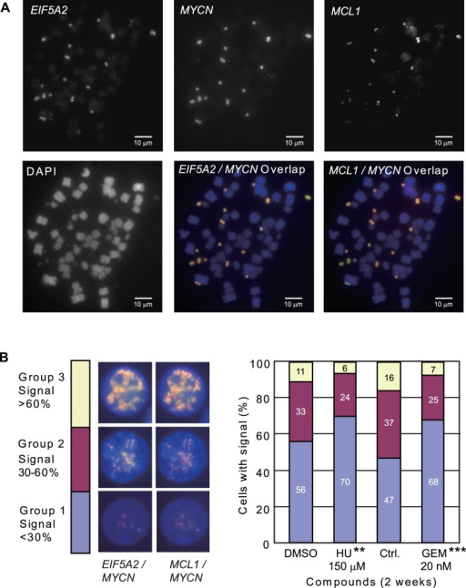 The signal of EIF5A2, MYCN, and MCL1 genes is decreased in HU and GEM treated UACC-1598.A. Genes EIF5A2, MYCN, and MCL1 are present on DMs in UACC-1598 cells. Metaphase spread of UACC-1598 cells detected with DNA probe for EIF5A2, MYCN, and MCL1. For the overlapped pictures, EIF5A2 and MCL1 signals are shown in red, and MYCN signal is shown in green. Overlapped EIF5A2/MYCN and MCL1/MYCN are shown in yellow. B. Representative pictures of EIF5A2/MYCN and MCL1/MYCN FISH signals in interphase cells of UACC-1598 and how individual cells are separated into different groups. MYCN signal is shown in green, EIF5A2 and MCL1 shown in red, and the overlap is shown in yellow. The percentage of cells in Groups 1, 2, and 3 is based on EIF5A2/MYCN and MCL1/MYCN FISH signals. The statistical analysis showed the differences of cells in Group 1 and Group 2/3 compared to the control cells. *denotes a P value of 0.01 to 0.05 and **denotes a P value of 0.001 to 0.01.