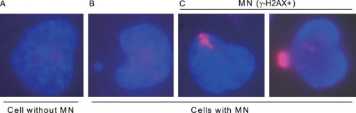 Classification of cells into different categories based on the presence of MN and γ-H2AX signal within MN.DAPI stained DNA is shown in blue, and γ-H2AX immunofluorescence signal is shown in red. The different groups: A, Cells without MN, B, Cells with MN, and C, Cells with MN (γ-H2AX+) are indicated.
