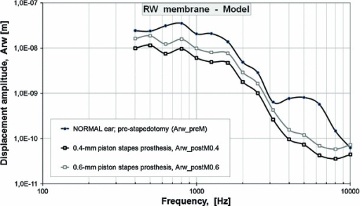 Pre-stapedotomy and post-stapedotomy model-derived amplitude frequency profiles of the RW membrane displacement (Arw). The figure presents the pre-stapedotomy frequency response curve (Arw_preM, NORMAL ear, thick, black, solid curve line, black circles) while the amplitudes of the harmonic displacement excitations are given in Table 2 (A_in pre-stapedotomy) in comparison with the post-stapedotomy curves while the 0.4-mm piston stapes prosthesis (Arw_postM0.4, 0.4-mm, thick, black, solid curve line, white squares) and 0.6-mm piston stapes prosthesis (Arw_postM0.6, 0.6-mm, thick, gray, solid curve line) were inserted into the oval window. The model-derived post-stapedotomy amplitude frequency profile of the RW membrane displacement was obtained for the amplitudes of the harmonic displacement excitations given in Table 2 (A_in post-stapedotomy)