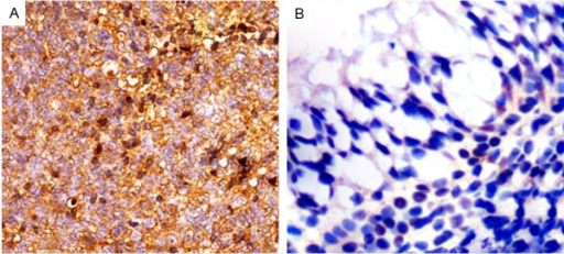 Immunohistochemical staining of NRP-1 protein in tumor cells of nasopharyngeal carcinoma (NPC, A) and non-cancerous nasopharyngeal tissues (B; Original magnification × 400). Intense staining of NRP-1 is seen in the cell membrane and/or cytoplasm of tumors cells and is intensive in NPC tissues (A). In contrast, negative immunostainings of NRP-1 (B) was observed in non-cancerous nasopharyngeal tissues.
