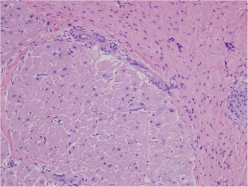 Histopathological findings. Markedly thickened fibrous endocardium (upper right) overlies normal myocardium (lower left). A layer of arterioles, venules and capillaries is seen at the interphase between the myocardium and thickened endocardium. Eosinophils are not present. (Hematoxylin-eosin stain; original magnification, ×400).