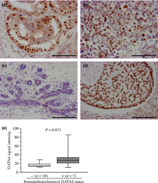 Immunohistochemistry for GATA4 in breast carcinoma. (a, b) GATA4 immunoreactivity was detected in the nucleus of carcinoma cells in ductal carcinoma in situ (DCIS) (a) and invasive ductal carcinoma (IDC) (b) tissues. (c) GATA4 immunoreactivity was not detected in the non-neoplastic mammary epithelium or stroma. (d) In the positive control section, GATA4 immunoreactivity was detected in granulosa cells of the antral follicle in the ovary. Bar, 100 μm, respectively. (e) Association between immunohistochemical GATA4 status and the signal intensity of the GATA4 gene obtained from microarray (n = 17). Data are represented as a box and whisker plot (open box, GATA4-negative group; and gray box, GATA4-positive group). The median value is represented by a horizontal line in each box and the 75th (upper margin) and 25th (lower margin) percentiles of the values are demonstrated. The upper and lower bars indicated the 90th and 10th percentiles, respectively. Statistical analysis was performed using the Mann–Whitney U-test.