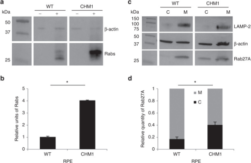 Characterization of the biochemical defect in CHM1 RPE. (a) A representative in vitro prenylation assay using a biotinylated prenyl donor followed by western blot analysis shows a weaker signal of incorporated biotin for the wild-type RPE than for the CHM1 RPE. (b) Semiquantification of the biotinylated Rab pool, after normalization with β-actin loading, confirms a significantly lower (*P < 0.05) relative quantity of biotinylated cytosolic Rabs in the wild-type RPE as opposed to that in CHM1 (data expressed as mean ± SEM, n = 3). (c) Following differential centrifugation and western blot analysis of Rab27A expression in the cytosolic (C) and membrane (M) fractions, a lower amount of Rab27A is detected in the cytosol of wild-type RPE, compared with that in the membrane fraction, for an equal β-actin loading. A less striking difference in Rab27A content between the two fractions is observed in CHM1 RPE. The depletion of the membrane fraction from the cytosol was controlled by hybridization with an anti-LAMP-2 antibody. (d) Semiquantification of the cytosolic fraction of Rab27A versus the total cellular content confirms a significantly lower quantity (*P < 0.05) in wild-type (WT) RPE, as opposed to the quantity in CHM1 RPE (data expressed as mean ± SEM, n = 3). LAMP, lysosomal membrane–associated protein; RPE, retinal pigment epithelium.
