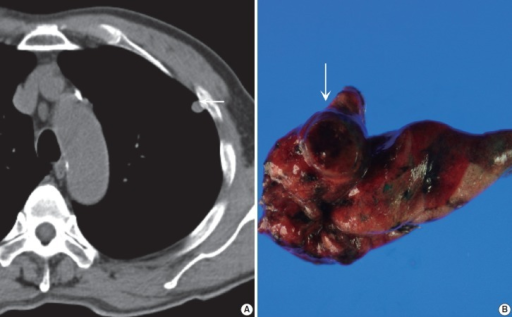 (A) Precontrast chest computed tomography shows a well-delineated low-attenuated oval mass (arrow) with slightly high density delete the portion in the subpleural area. (B) Gross photo shows a well-demarcated ovoid mass (arrow) with a mucous gelatinous texture with focal hemorrhage.