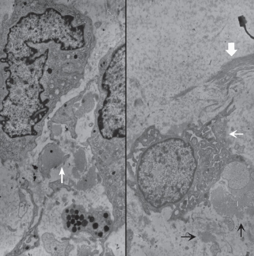 Ultrastructural examination reveals spindle to round cells with round euchromatic nuclei and cytoplasm having many lysosomes, mitochondria, and rough endoplasmic reticulums. Extracellular amorphous mucin material (arrow) is observed (left, ×2,500). Multiple ruffled cell surfaces (thin arrow) and abundant collagen fibrils (thick arrow) are also observed (right, ×3,500).