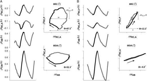 A, B, Time courses of Vrc,p, Vrc,a, Vab, and Vcw during a typical respiratory cycle during quiet breathing at rest in a representative patient before (A) and after (B) lung volume reduction surgery (LVRS). Black line represents the inspiratory portion of the respiratory cycle, and asynchronous movement of abdominal ribcage compartment (RC,a) before LVRS is clearly demonstrated, as is the improvement thereof after LVRS. Lissajou figures of the dynamic loops of ΔVrc,p vs ΔVrc,a (θRC) and ΔVrc,a vs ΔVab (θDIA) during quiet breathing are used to calculate θ. m = line parallel to the x axis at 50% of one compartment's tidal volume; s = the second compartment's tidal volume. Phase shift is calculated as θ = sin−1 (ms−1). θDIA = phase shift angle between Vrc,p and Vrc,a; θRC = phase shift angle between Vrc,p and Vrc,a. See Figure 1 legend for expansion of other abbreviations.