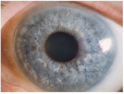 Corneal button sutured with double-running cross-stitch suture six weeks after excimer laser keratoplasty and 8 cardinal sutures for temporary fixation have been removed at the end of surgery.