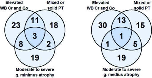 Venn diagrams showing the overlapping of findings of interest in patients with moderate-to-severe g. minimus atrophy (left panel) and with moderate-to-severe g. medius atrophy (right panel). Patients with moderate-to-severe g. maximus atrophy are not shown because of the very low prevalence.
