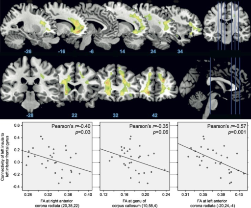 Fractional anisotropy (FA) measured on DTI for younger > older adults at P < 0.05 FWE corrected cluster threshold and clusters with >20 voxels (top panel). Correlation between left insula and left inferior frontal gyrus connectivity and FA (bottom panel).