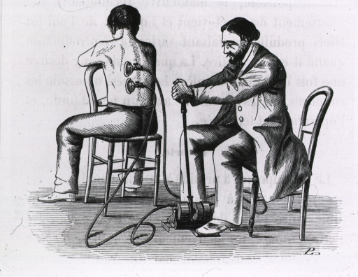 <p>Patient being cupped by physician (?) with a terabdell or pneumatic machine.</p>