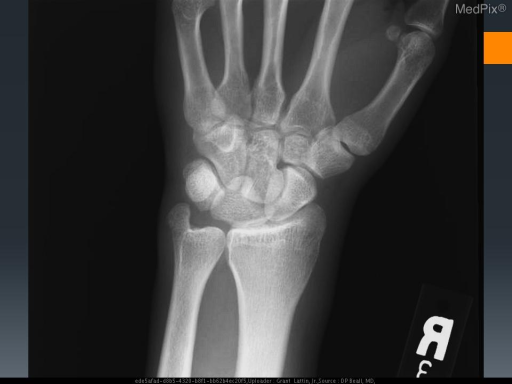 Lunate not in normal alignment with radius. Lunate is anteriorly dislocated.  Ulnar styloid fracture is also seen.