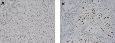 Immunohistochemical analysis of cyclin E protein expression in gastric cancer tumours. (A) Diffuse type of gastric cancer tumour without 19q amplicon, no detection of cyclin E overexpression and (B) Intestinal type of gastric cancer with 19q amplicon, increased nuclear staining of cyclin E detected.