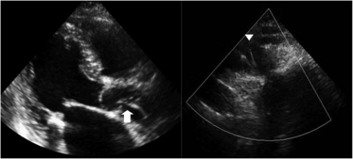 Two-dimensional echocardiography showed string-like echogenicity from the ascending aorta (arrow) to the aortic arch (arrow head).