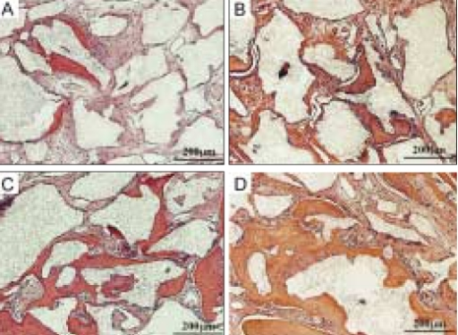 Photomicrographs of histological sections from critical size 8 mm rat craniotomy defects following implantation of β-TCP (Synthograft®) and several types of PRP at 7 weeks. A: β-TCP only, B: β-TCP and 0.1% triton-X treated PRP, C: β-TCP and PRP activated with 142.8 U/ml thrombin and 4.3 mg/ml CaCl2, D: β-TCP and angiogenic factorsenriched PRP (activated with shear force, 20 mg/ml collagen, 10 U/ml thrombin and 2 mM CaCl2 and containing peripheral blood mononuclear cells).