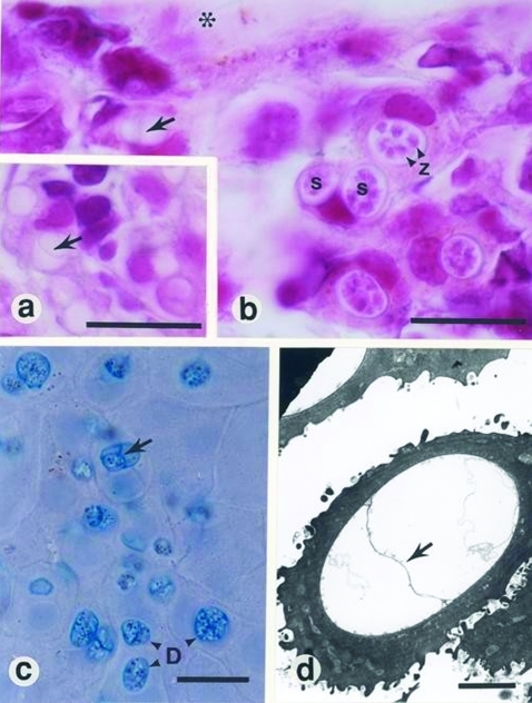 a and b, histopathologic findings from infected frogs. Characteristic sporangia (s) containing zoospores (z) are visible in the epidermis (asterisk, superficial epidermis; arrow, septum within an empty sporangium; bars, 10 μm. c, Skin smear from infected frog, stained with 1:1 cotton blue and 10% aqueous potassium hydroxide (aq KOH) (D, developing stages of Batrachochytrium dendrobatidis; arrow, septum within a sporangium; bar, 10 μm. d, Electron micrograph of an empty sporangium showing diagnostic septum (arrow) (bar, 2 μm).