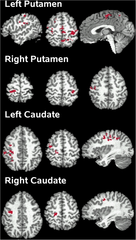 Cortical regions showing connectivity with the striatum that was modulated by medication.For each striatal seed region, activation is projected onto the lateral and medial surfaces of the left and right hemispheres, which are displayed in neurological view. See Table 4 for details about individual activation foci.