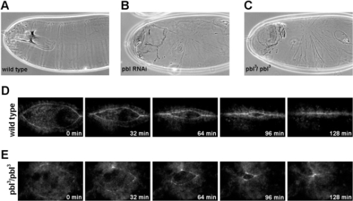 Pbl is required for the morphogenesis of the dorsal epithelium.(A–C) Cuticle preparations of embryos. (A) Wild-type cuticle. (B) Cuticle of an embryo injected with dsRNA for pbl. (C) Cuticle of a homozygous pbl3 mutant embryo. (D and E) Frames from movies of embryos expressing ZCL0423 protein trap- EGFP fusion protein. Embryos are shown in dorsal view, scale bars represent 50 µm. (D) Wild type embryo. (E) pbl3/pbl3 mutant embryo.
