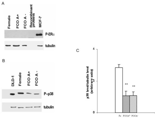 Activation status of estrogen receptors. Representative western blot for estrogen receptor α phosphorylation (A) and representative western blot with corresponding densitometric analysis of estrogen receptor β activity (measured as p38 phosphorylation) (B, C) in estrogen receptor α-expressing MCF-7 and estrogen receptor β-expressing DLD-1 cell lines stimulated with 10 nM estradiol (1 h) and in monocyte-derived macrophages (MDMs) from Fs (white bar), FOCA+ (circle bar) and FOCA- (striped bar). Data are expressed as the mean ± SD of at least four independent experiments. **P < 0.001 vs Fs. FOCA+/FOCA- = FOCs further stratified as a function of androgenic (FOCA+) and non-androgenic (FOCA-) properties of progestins; FOCs = women treated with OCs for at least 3 months; Fs = women who had not used OCs for at least 3 months to ensure a sufficient washout period; OC = oral contraceptive.