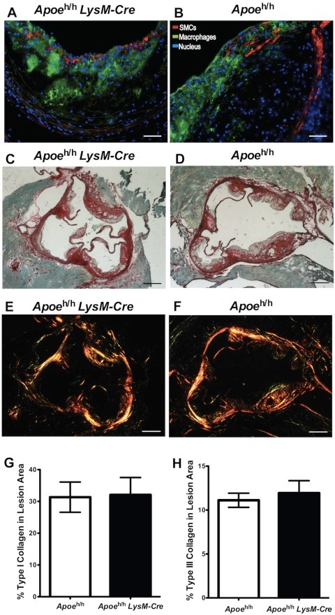 Atherosclerotic plaque composition.Immunofluorescent images of Apoeh/hLysM-Cre (A) and Apoeh/h mice (B; scale bar = 50 µm) aortic roots; anti-smooth-muscle-cell-α-actin (SMCs, red), anti-Mac-2 (Macrophages, green) and nuclei (blue). Sirius Red stained aortic roots (brightfield (C–D) and polarized light (E–F)) from Apoeh/hLysM-Cre (C,E) and Apoeh/h mice (D,F); (scale bar = 250 µm). Collagen quantification (G–H, n = 7, mean±sem).