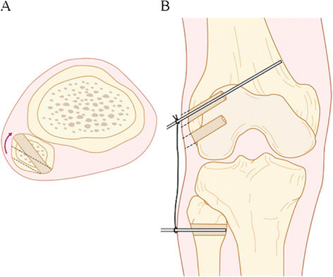 Figure 3:A modified Larson's method of posterolateral ...