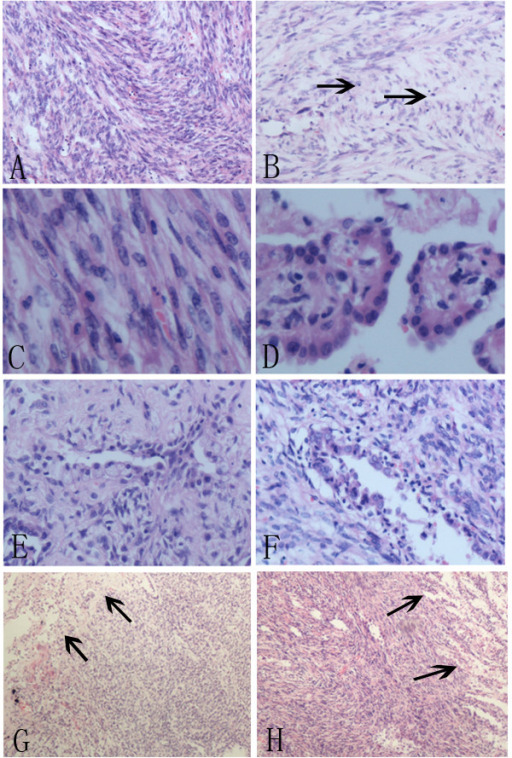 A, The spindle tumor cells were arranged in bundles and whirling patterns.B, The scattered lymphocytes (arrows) could be seen in the background of spindle cells. C, The spindle cells had no marked cellular atypia, with pale to eosinophilic cytoplasm, fine chromatin and inconspicuous nucleoli. D, Papillary area showed the surface cuboidal cells and polygonal cells in the stroma. E, Sclerotic area was characterized by hyalinized collagen with scarcely distributed polygonal cells and adenoidal structures consisting of cuboidal cells. F, An adenoidal structure covered with cuboidal cells could be seen in spindle cells area. G, H, The border of the tumor (arrows) was relatively well circumscribed.