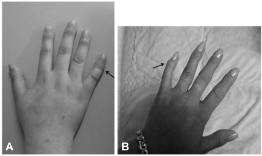 Characteristic deformity of hand. A: patient's right fifth finger showing clinodactyly (arrow). B: patient mother's left fifth finger also showing clinodactyly (arrow).