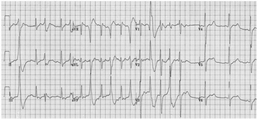 Initial 12 lead electrocardiogram. Ventricular bigeminy with two different morphologies of QRS, along with long QT interval.