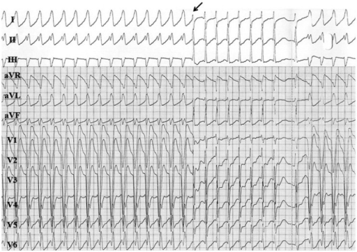 The 12 lead electrocardiogram of tachycardia. The wide QRS tachycardia was changed to narrow QRS tachycardia (arrow). After the termination of narrow QRS tachycardia, wide QRS tachycardia started. ECG: electrocardiogram.