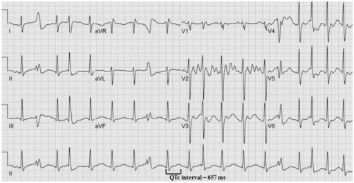 The 12 lead ECG without wide QRS tachycardia. This ECG shows prolonged QT interval with prominent U wave. And some premature ventricular contractions are presented at the end of T wave, consistent with R on T phenomenon. ECG: electrocardiogram.