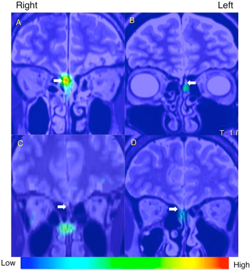 SPECT-MRI fusion image (coronal view) of nasal 201Tl migration to the olfactory bulb.White arrows indicate the olfactory bulb and olfactory nerve. (A) A 60-year-old healthy male volunteer. (B) A 44-year-old female with hyposmia after head trauma. (C) A 42-year-old female with hyposmia after upper respiratory tract infection. (D) A 67-year-old female with hyposmia due to chronic rhinosinusitis. The index of 201Tl migration from the olfactory epithelium to the olfactory bulb in the selected subjects was shown in Table 2.