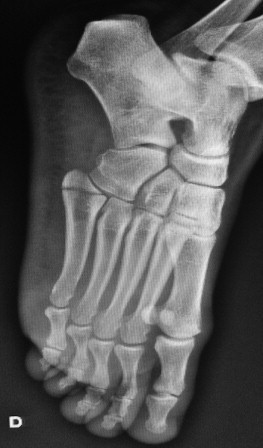 Right foot X-ray (oblique view) demonstrating a fifth metatarsal fracture.