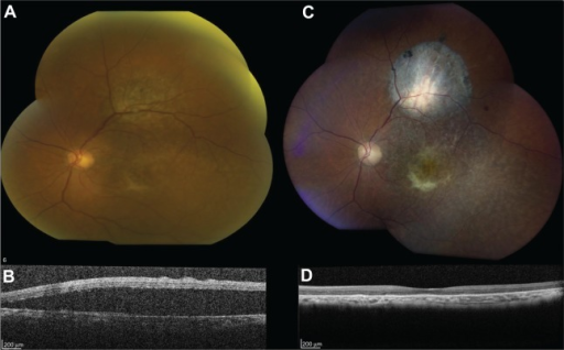 83-year-old male with 20/200 vision in the left eye.Notes: (A) Initial fundus photograph shows an atypical pigmented choroidal nevus, with presence of drusen. (B) Initial optical coherence tomography demonstrates considerable subretinal fluid. (C and D) Imaging after seven bevacizumab injections, with complete regression of fluid. Best corrected final visual acuity was maintained at 20/200 at 16 months of follow-up.