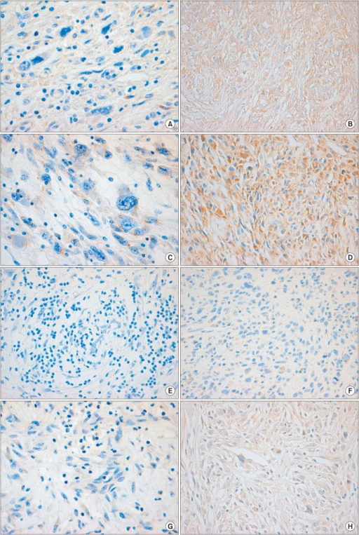 Immunohistochemical staining findings for matrix metalloproteinase (MMP) 2, MMP-9, tissue inhibitors of metalloproteinase (TIMP) 1, and TIMP-2 in the non-metastatic malignant fibrous histiocytoma (MFH) and metastatic MFH cells. MMP-2 and MMP-9 were weakly expressed in non-metastatic MFH cells (A, C), but predominantly expressed in metastatic MFH cells with diffuse, strong intensities (B, D). TIMP-1 and TIMP-2 showed negative expressions in non-metastatic MFH cells (E, G) and focal strong expression in metastatic MFH cells (F, H) (A-H, ×200). (A) MMP-2 in non-metastatic MFH. (B) MMP-2 in metastatic MFH. (C) MMP-9 in non-metastatic MFH. (D) MMP-9 in metastatic MFH. (E) TIMP-1 in non-metastatic MFH. (F) TIMP-1 in metastatic MFH. (G) TIMP-2 in non-metastatic MFH. (H) TIMP-2 in metastatic MFH.