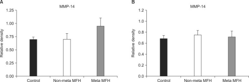 Results of reverse transcriptase polymerase chain reaction (A) and Western blotting (B) for matrix metalloproteinase (MMP) 14. Expression levels of MMP-14 in the control, non-metastatic malignant fibrous histiocytoma (MFH), and metastatic MFH groups were not statistically significantly different. Meta: metastatic. *Significant, Mann-Whitney U-test, p < 0.05.