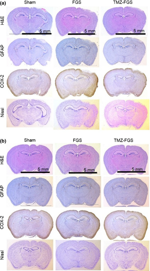 Adverse effects of fibrin glue sheets containing temozolomide (TMZ-FGS) on normal mouse brain. Effects in the acute (a) and chronic (b) phase are shown. Left, sham; middle, FGS alone; right, FGS containing 1 mM TMZ. Low magnification; bar, 5 mm.