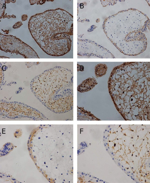 In second-trimester placenta, an intense signal was still shown in syncytiotrophoblasts and stromal cells (A, D). Anti-cytokeratin-7 antibody was positive for trophoblast cells (B, E), and anti-vimentin antibody was positive for villous stroma (C, F). A, B, C: ×200 magnification and D, E, F: ×400 magnification.