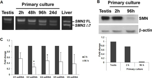 The levels of SMN2 full-length mRNA and protein decrease during testis cell primary culture.(A) Total RNA was isolated from primary testis cells cultured for different time periods (2 hours, 48 hours, 96 hours and 24 days) and subjected to RT-PCR to amplify SMN2 FL and Δ7 mRNAs. For comparison, total RNA isolated directly from the testis and liver was also analyzed. A representative result of three independent experiments was shown. The result showed that primary testis cells after a 2-hour culture still expressed high level of SMN2 FL mRNA. However, the level decreased after longer cultures. (B) Proteins extracted from primary testis cells cultured for 2 hours and 96 hours were subjected to Western blotting to detect SMN protein. The result showed that SMN protein level was high in 2-hour cultured cells and decreased dramatically in 96-hour cultured cells, consistent with the result of SMN2 exon 7 splicing. (C) snRNP complexes were isolated from primary testis cells cultured for 2 hours and 96 hours by anti-Sm antibodies. Various snRNAs were then extracted and quantitated by real-time PCR. The result showed that the levels of snRNP complexes decreased in 96-hour cultured cells compared with 2-hour cultured cells. Error bars represent standard deviation. (*) P < 0.05, compared with 2-hour cultured cells.