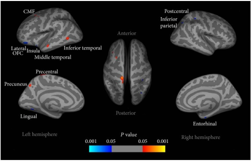 Cortical thickness differences in adolescents with IGD compared with healthy controls. Increased cortical thickness was observed in several regions in adolescents with IGD compared to healthy controls, that is, the left precentral cortex, precuneus, middle frontal cortex, and inferior temporal and middle temporal cortices. Reduced cortical thickness in the left lateral OFC, insula cortex, and lingual gyrus, along with the right postcentral gyrus, entorhinal cortex, and inferior parietal cortex were detected in adolescents with IGD [23].