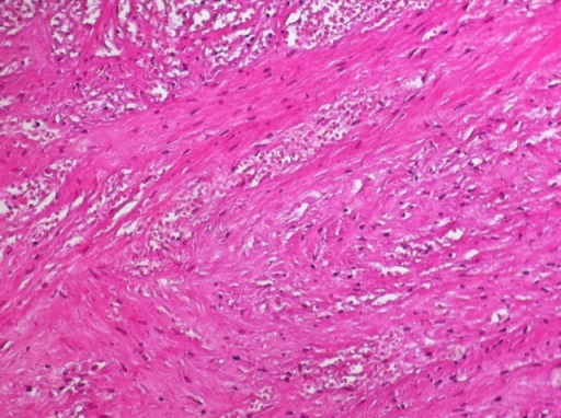 Histopathology of ovarian fibroma showing ischemic necrosis (X4)